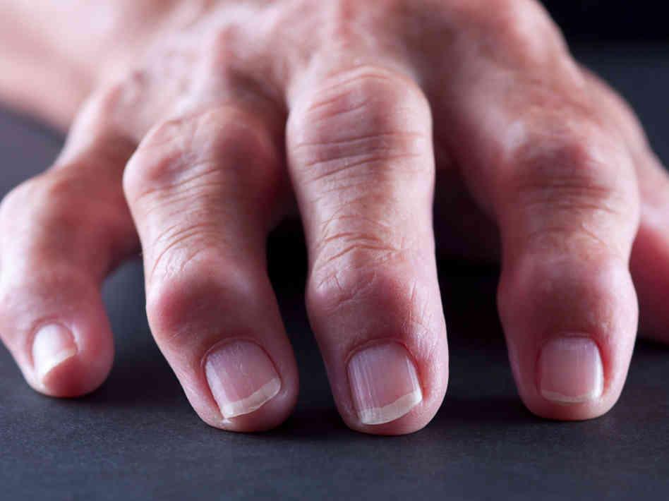 Artrosi: sintomi e cure
