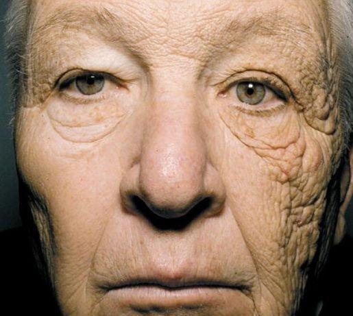 Come invecchia la pelle scottata dal sole