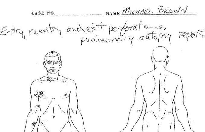 autopsia brown