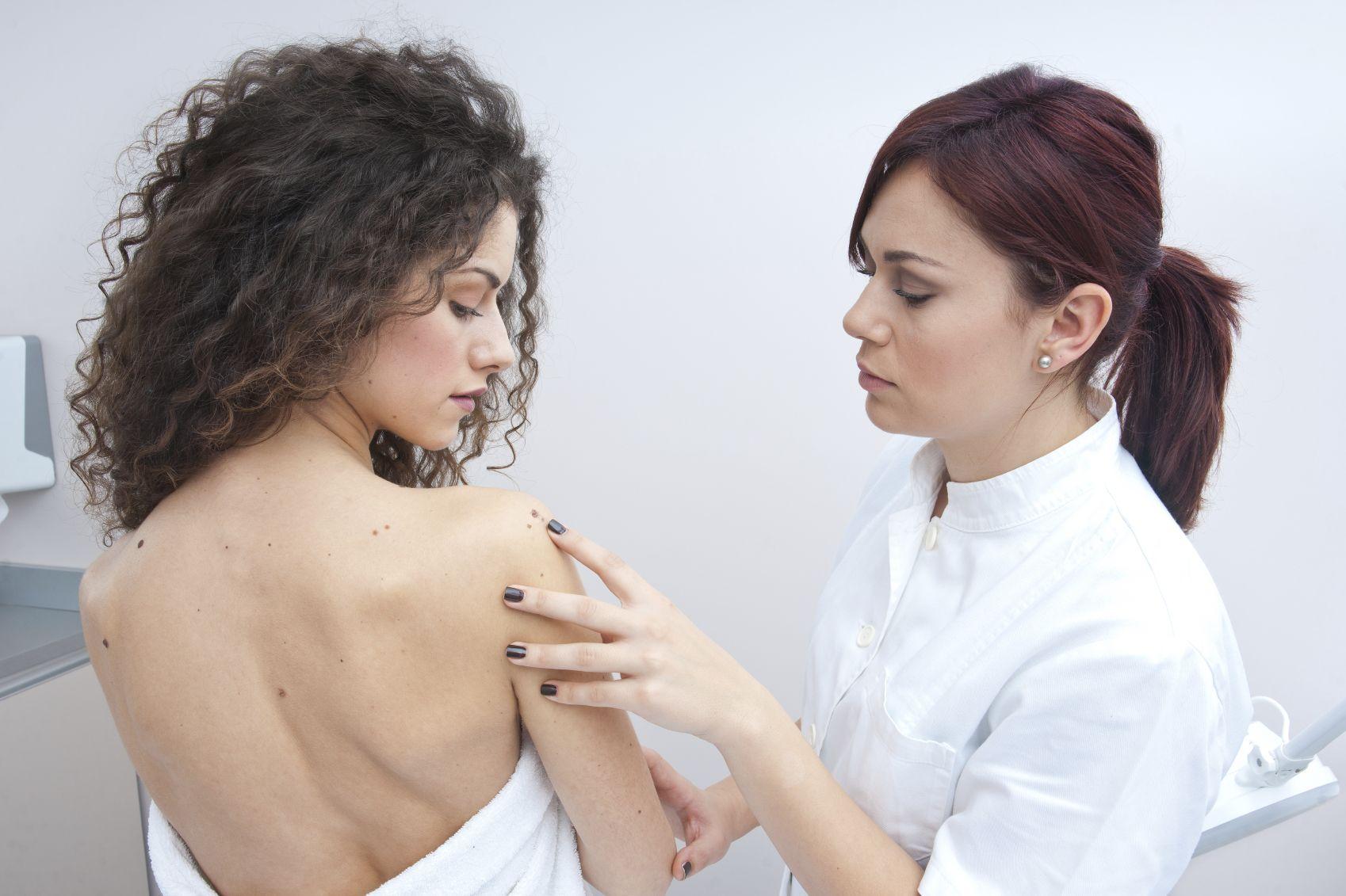 Melanoma: sintomi, cause e cure