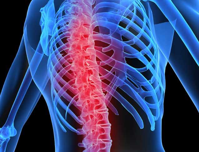 Osteoporosi, sintomi e cura