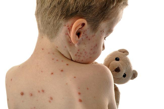 Morbillo nei bambini: sintomi e terapia