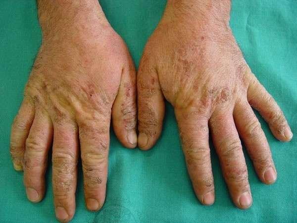 Dermatite atopica: sintomi, rimedi e cura