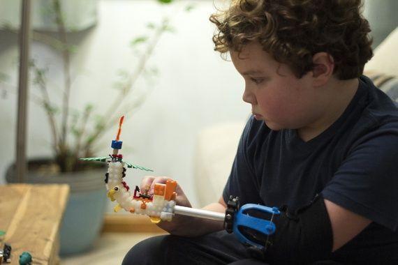 Bambino senza mano ne costruisce una coi Lego