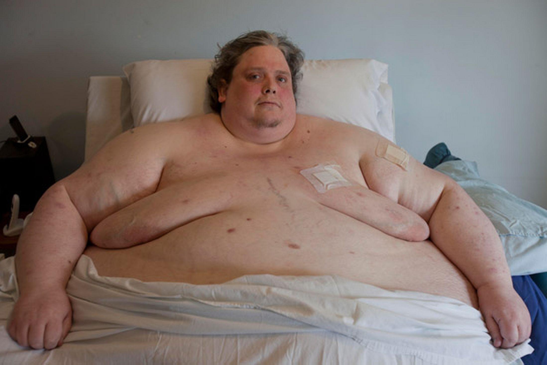 L'uomo più grasso del mondo è morto per una polmonite