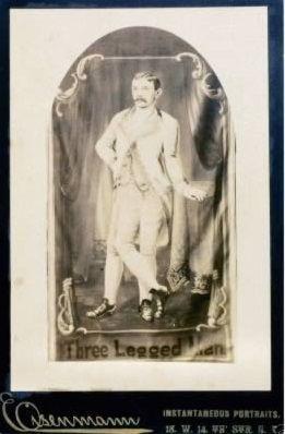Uomo con tre gambe