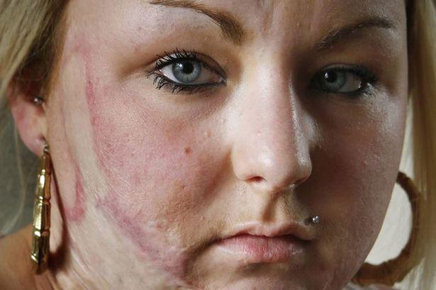 Ustionata in un incidente diventa mamma: 'E' un miracolo'