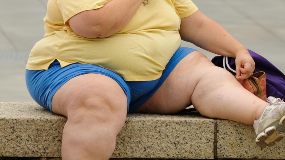 Obesa rifiuta l'operazione gratuita per non perdere la pensione