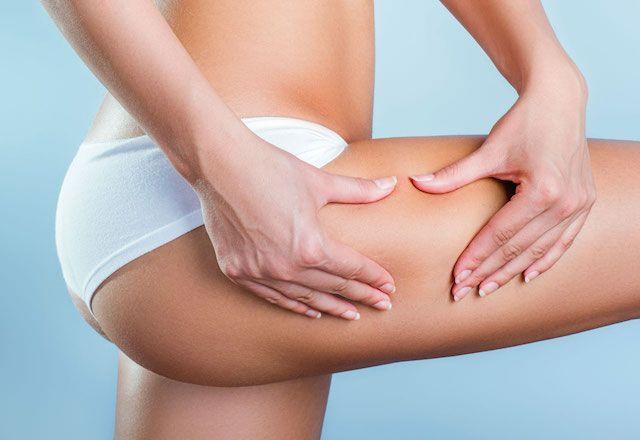 8 cibi contro la cellulite