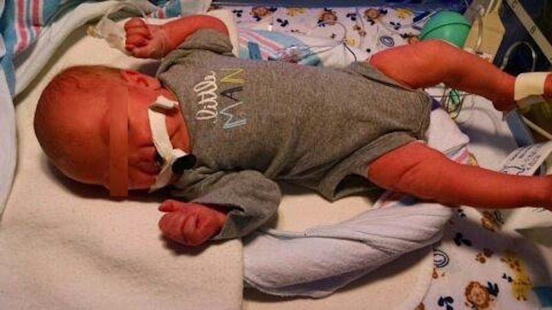 Bimba nasce senza naso, i genitori: 'È perfetta così, per ora non vogliamo operarla'