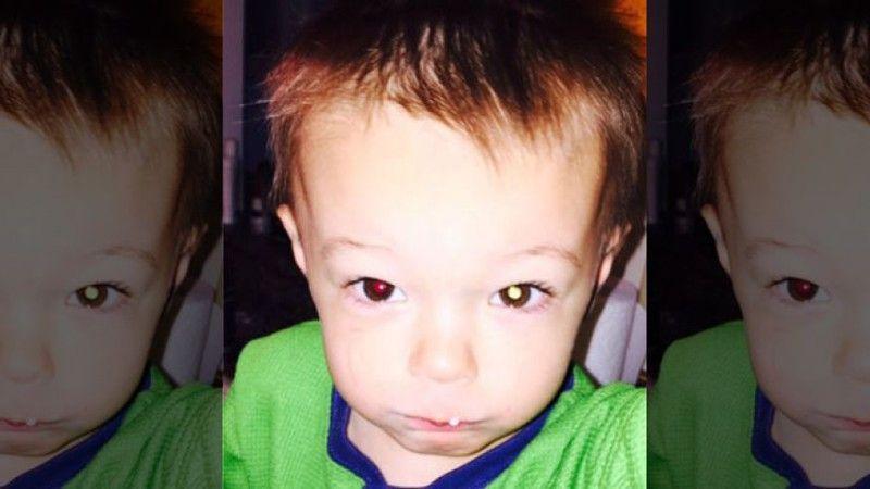 Scatta una foto al figlio e scopre un tumore all'occhio