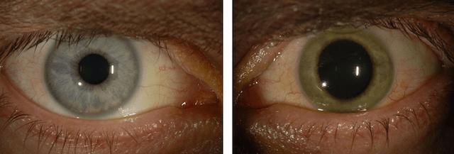 Guarito dall'Ebola, il virus gli cambia il colore dell'occhio