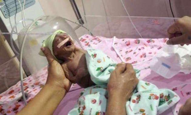 Nasce prematura e malata, i genitori la abbandonano