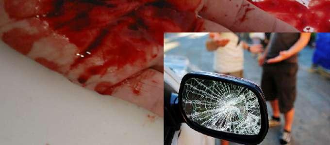 """Truffa auto: occhio alla """"mano sanguinante"""""""