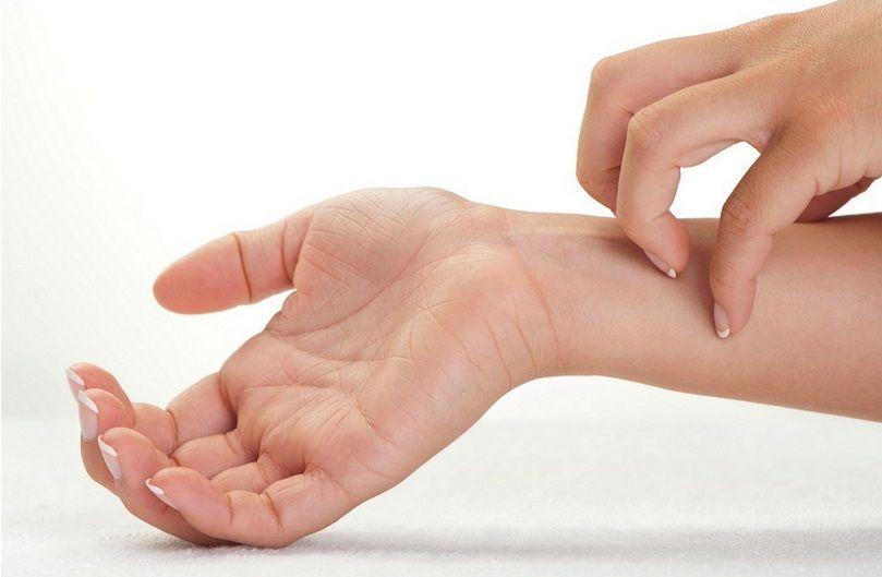 Scabbia: sintomi, contagio e cura