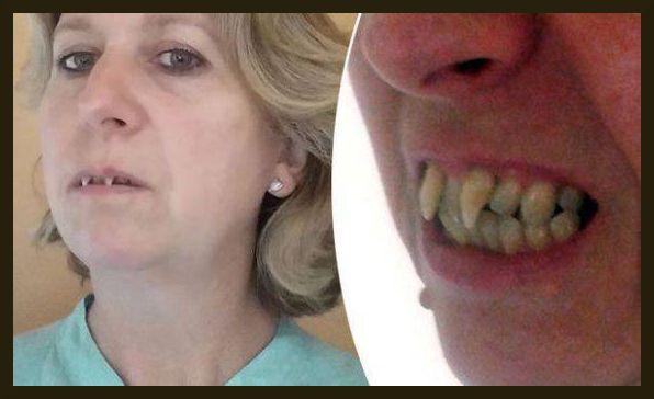 Charlotte è diventata un vampiro, colpa del dentista