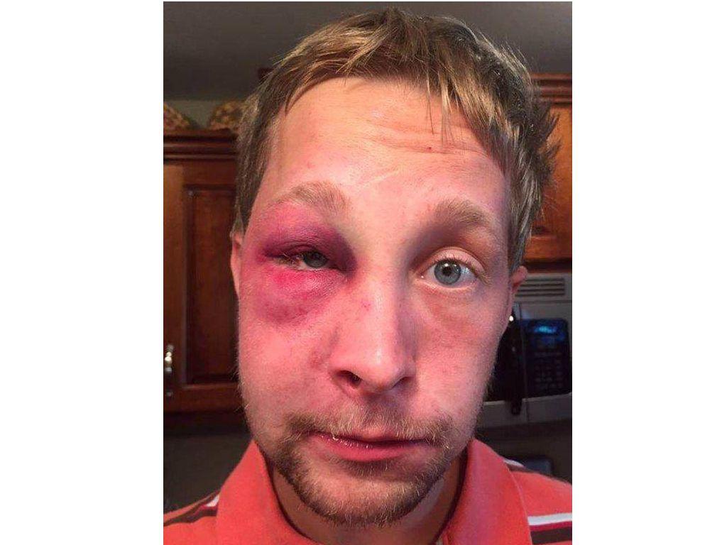 Ha la sindrome di Asperger, viene picchiato ma decide di non denunciare i bulli (a una condizione)