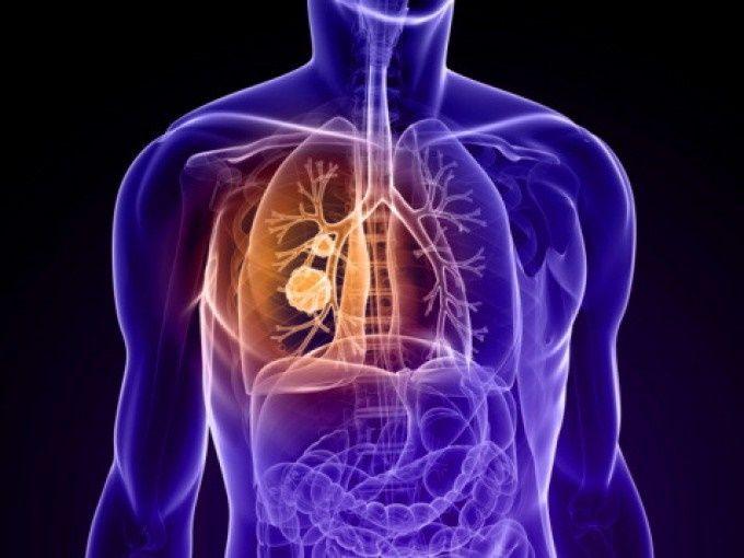 Ascesso polmonare: sintomi, cause e cura