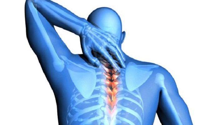 Cifosi cervicale: sintomi ed esercizi