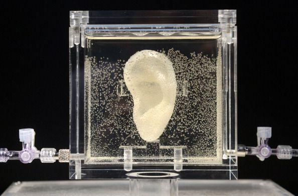 orecchio van gogh 150x150