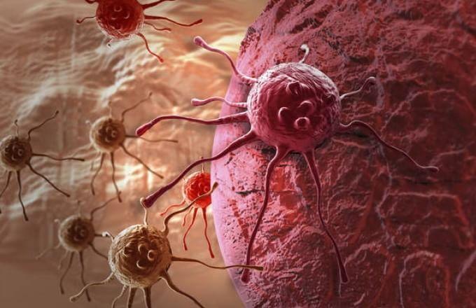 Tumori: diffusione in Italia e regole per la prevenzione