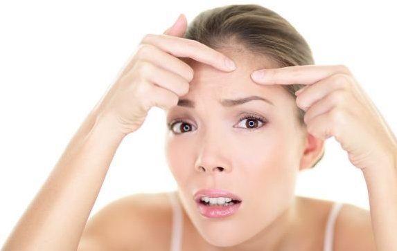 schiacciare brufoli acne