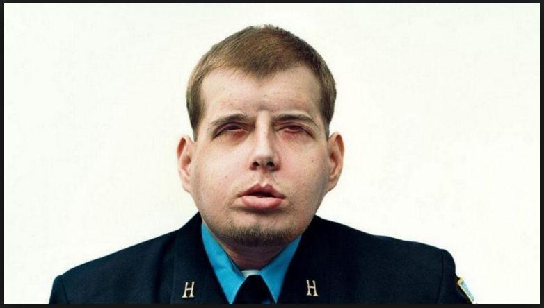 Pompiere sfigurato durante un soccorso ha di nuovo un volto