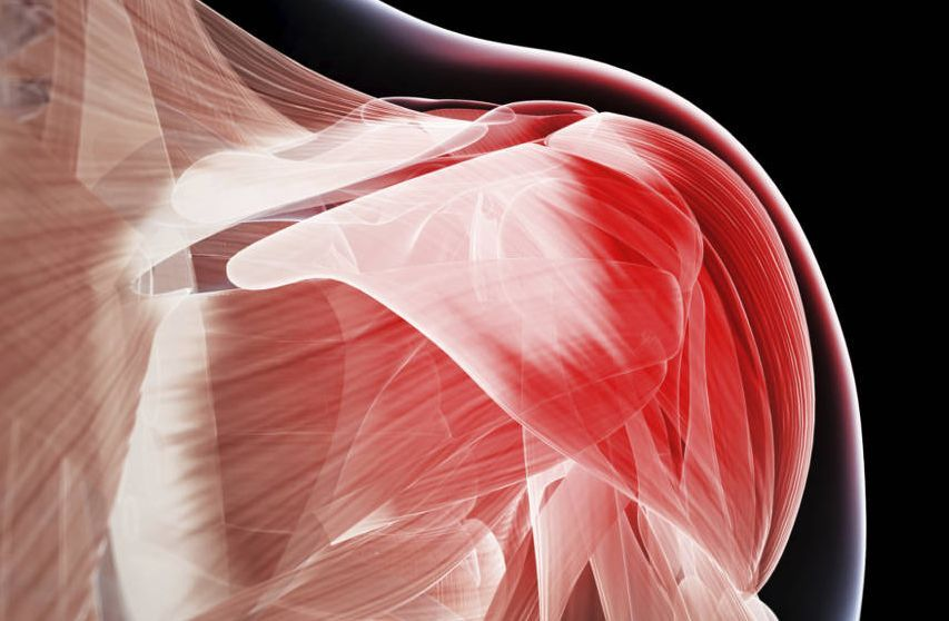 muscoli crioterapia