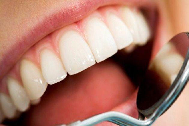 Carie dentali: addio otturazioni, arriva il super smalto al fluoro