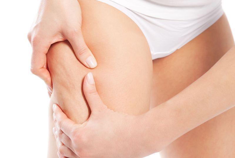 diagnosi cellulite