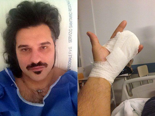 Mauro Marin del Grande Fratello 10 ha perso due dita per un incidente con la motosega