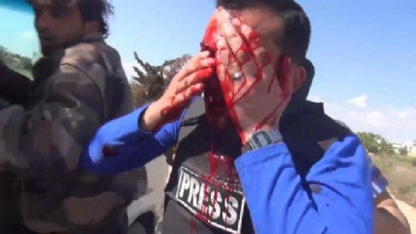 Siria, giornalista colpito in diretta da un proiettile in un occhio