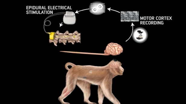 Neurotrasmettitore elettrico