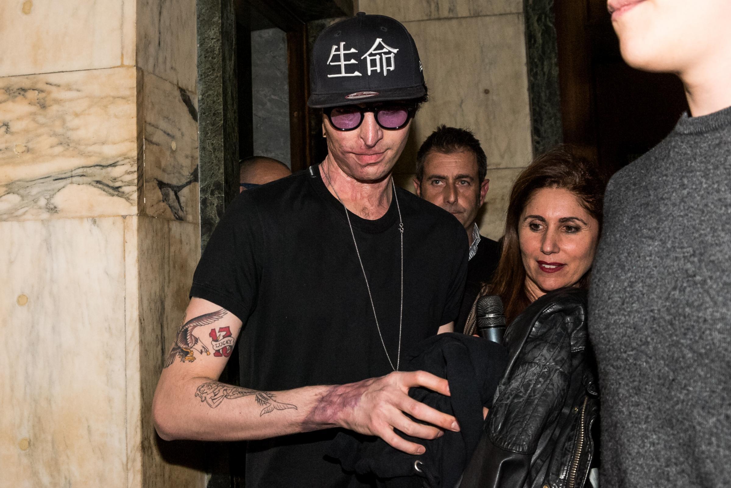 Coppia dell'acido, la forza di Stefano Savi: 'Non li odio, spero che restino in carcere' – L'intervista a Le Iene
