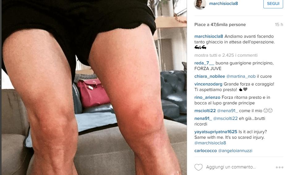 Il ginocchio gonfio di Marchisio