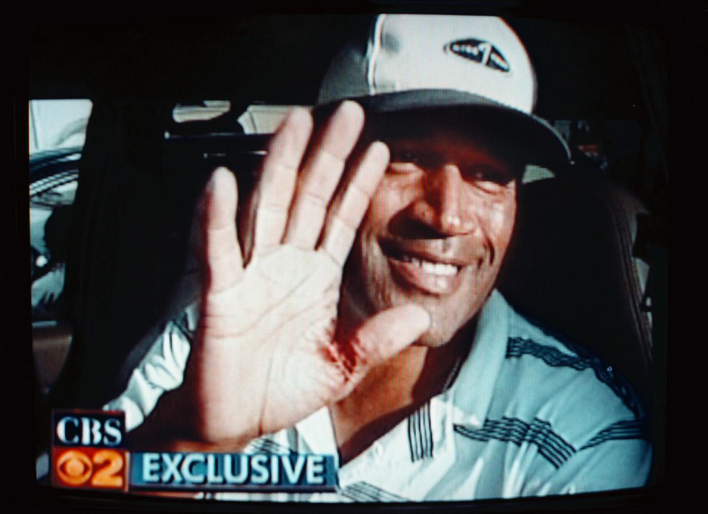 OJ Simpson mostra la mano ferita
