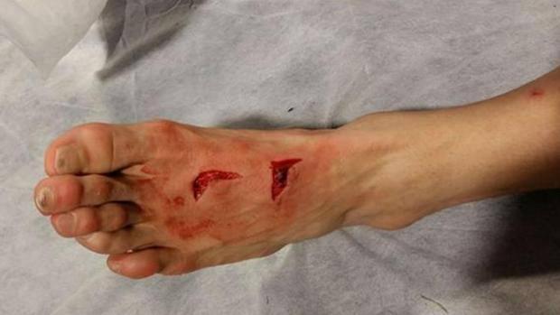 Porto-Juventus, la foto del piede di Herrera dopo un fallo, fake?