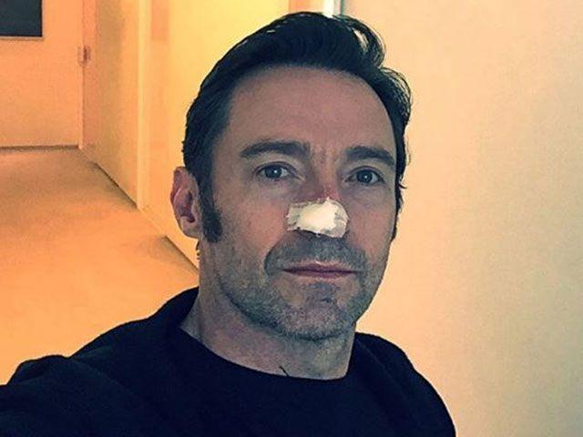 Hugh Jackman, cancro alla pelle: nuova operazione, è la sesta