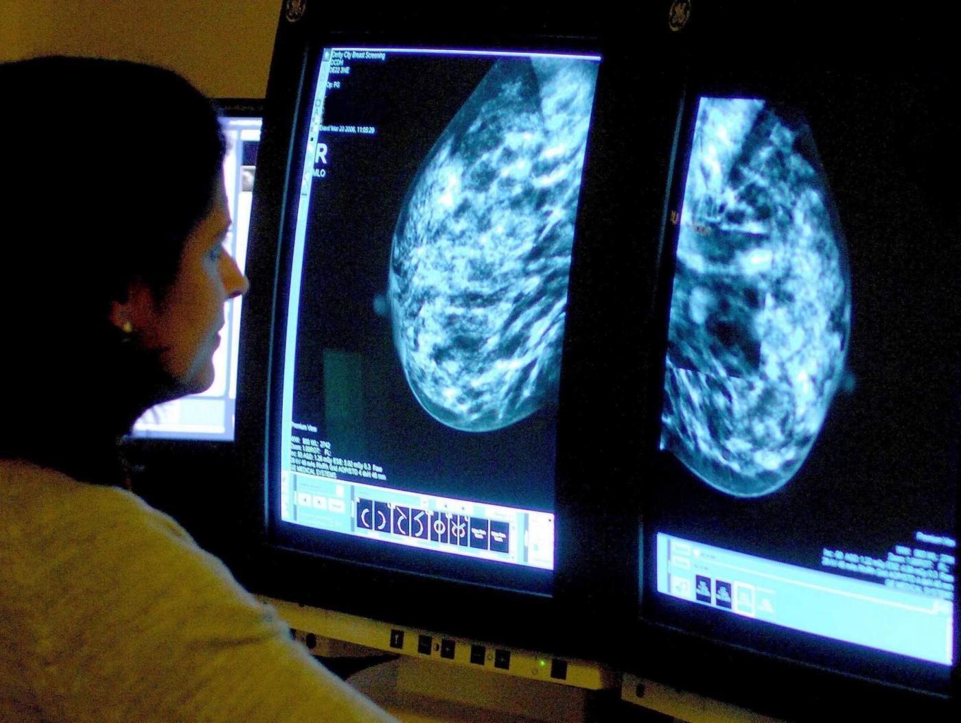 Visite al seno gratis e screening per la prevenzione del tumore a Salerno