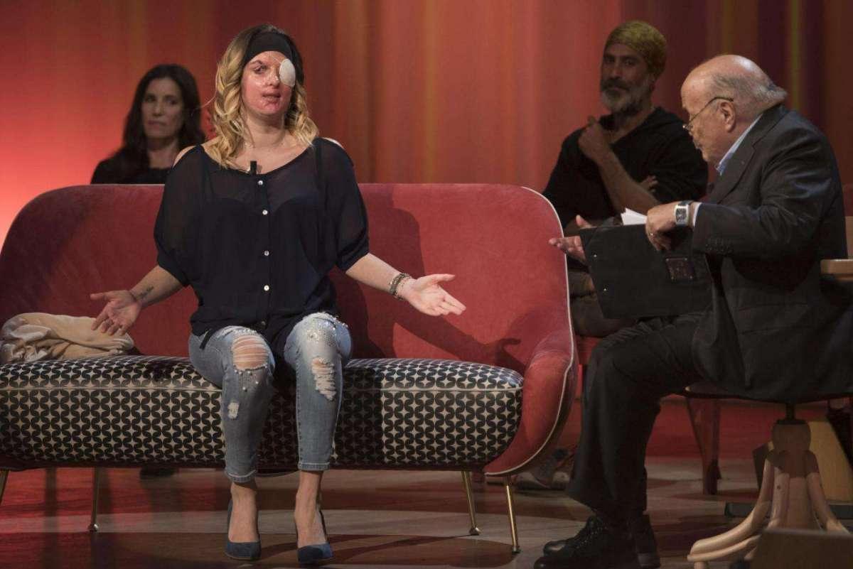 Gessica Notaro sfregiata dall'acido, la giovane mostra il suo volto in tv