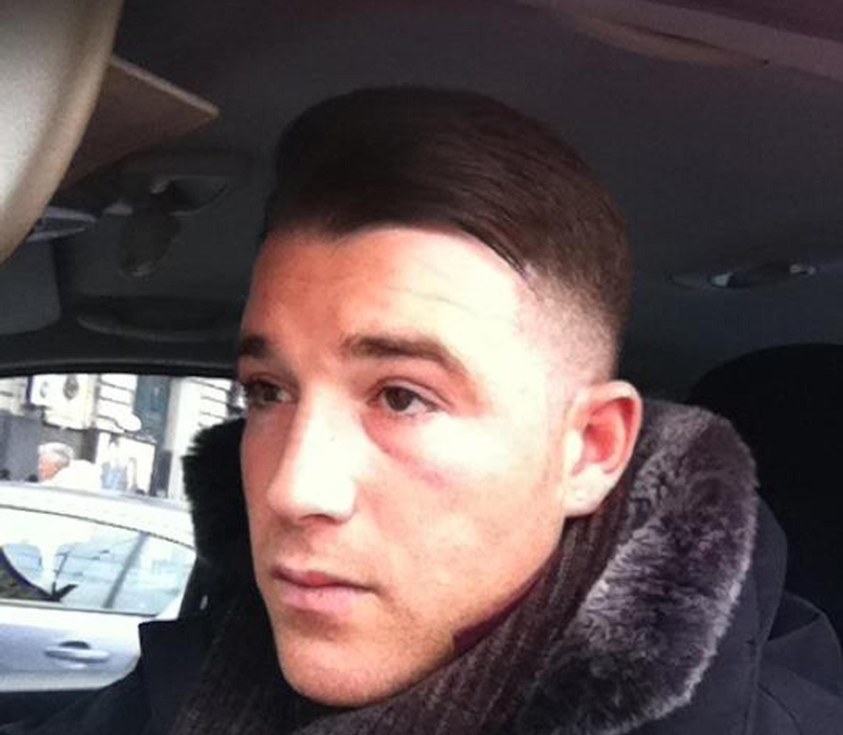 Stati Uniti: turista italiano ucciso a colpi di arma da fuoco