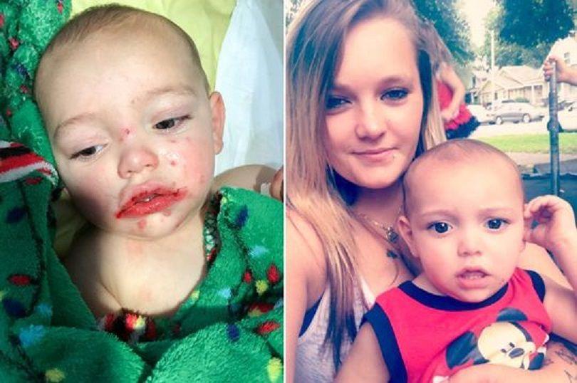 Herpes, bambino di 14 mesi rischia la vita per un bacio