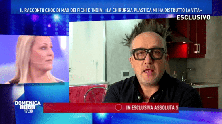 Max Cavallari dei Fichi d'India: 'Ho rischiato di morire per la chirurgia plastica'