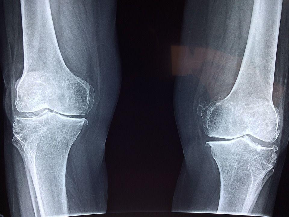 Giornata mondiale dell'osteoporosi: 250 mila fratture di femore ogni anno in Italia