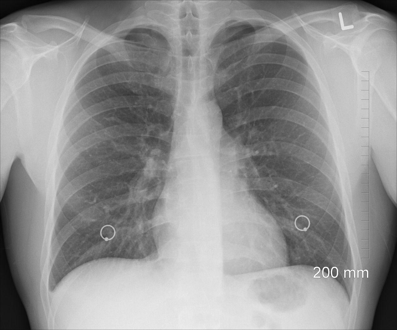 Malattie dell'apparato respiratorio: le patologie più gravi