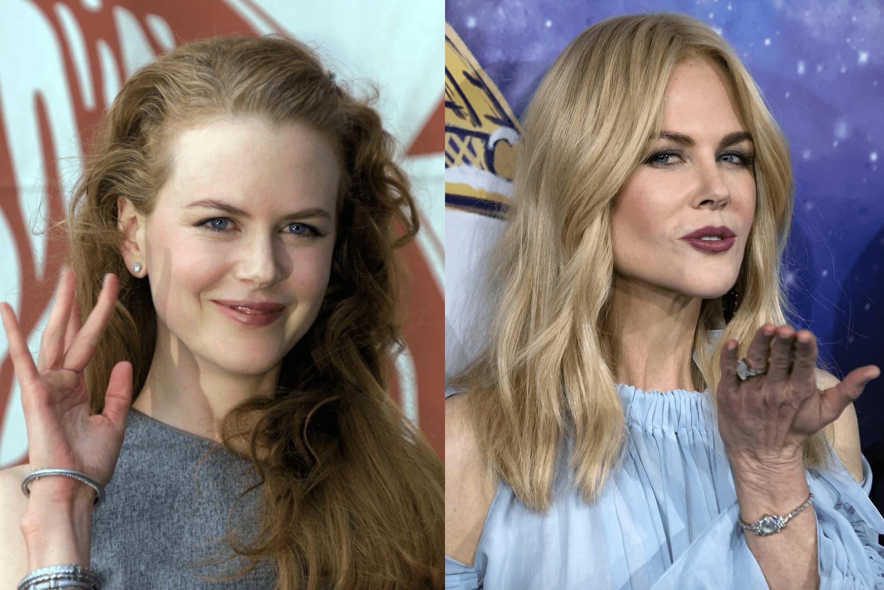 Nicole Kidman è migliorata con gli anni ieri e oggi età