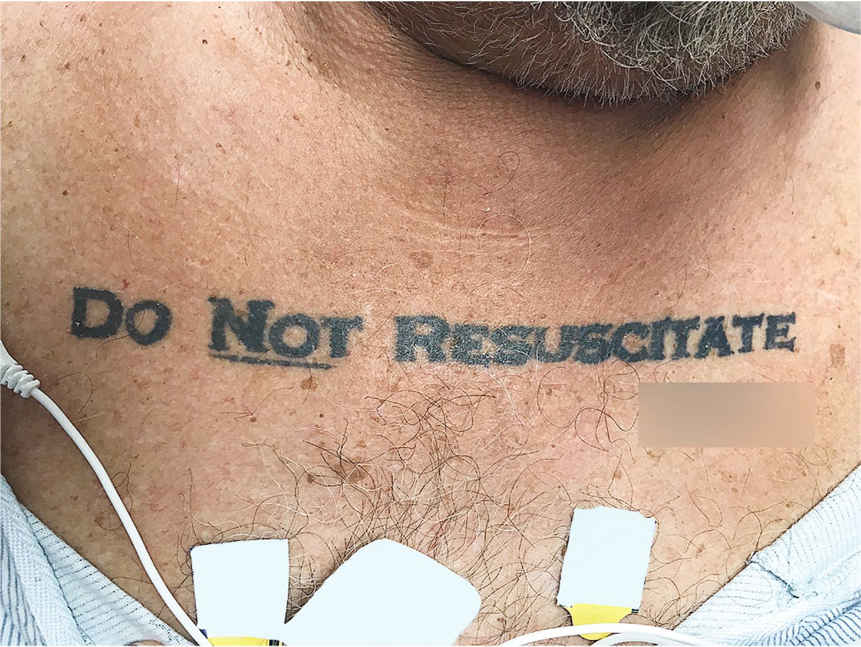 Tatuaggio non rianimare sul collo, i medici rispettano la volontà del paziente