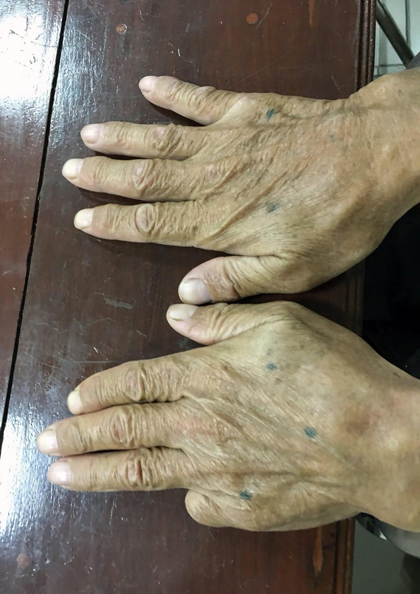Il dito mozzato di Shigeharu Shirai