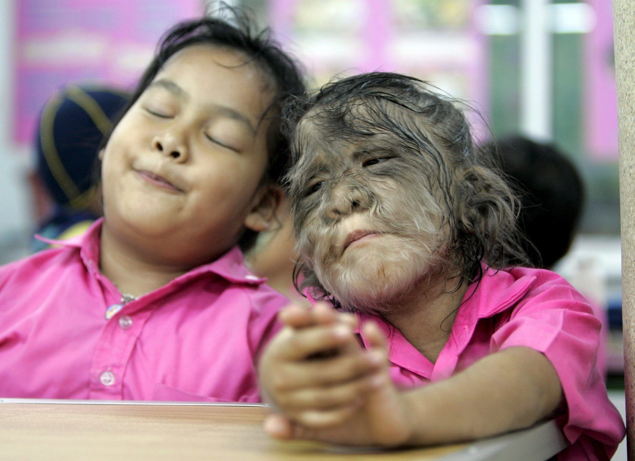 THAI GIRL WITH RARE GENETIC DISORDER BEATS DIFFERENCE WITH FAMILY AND FRIENDS LOVE