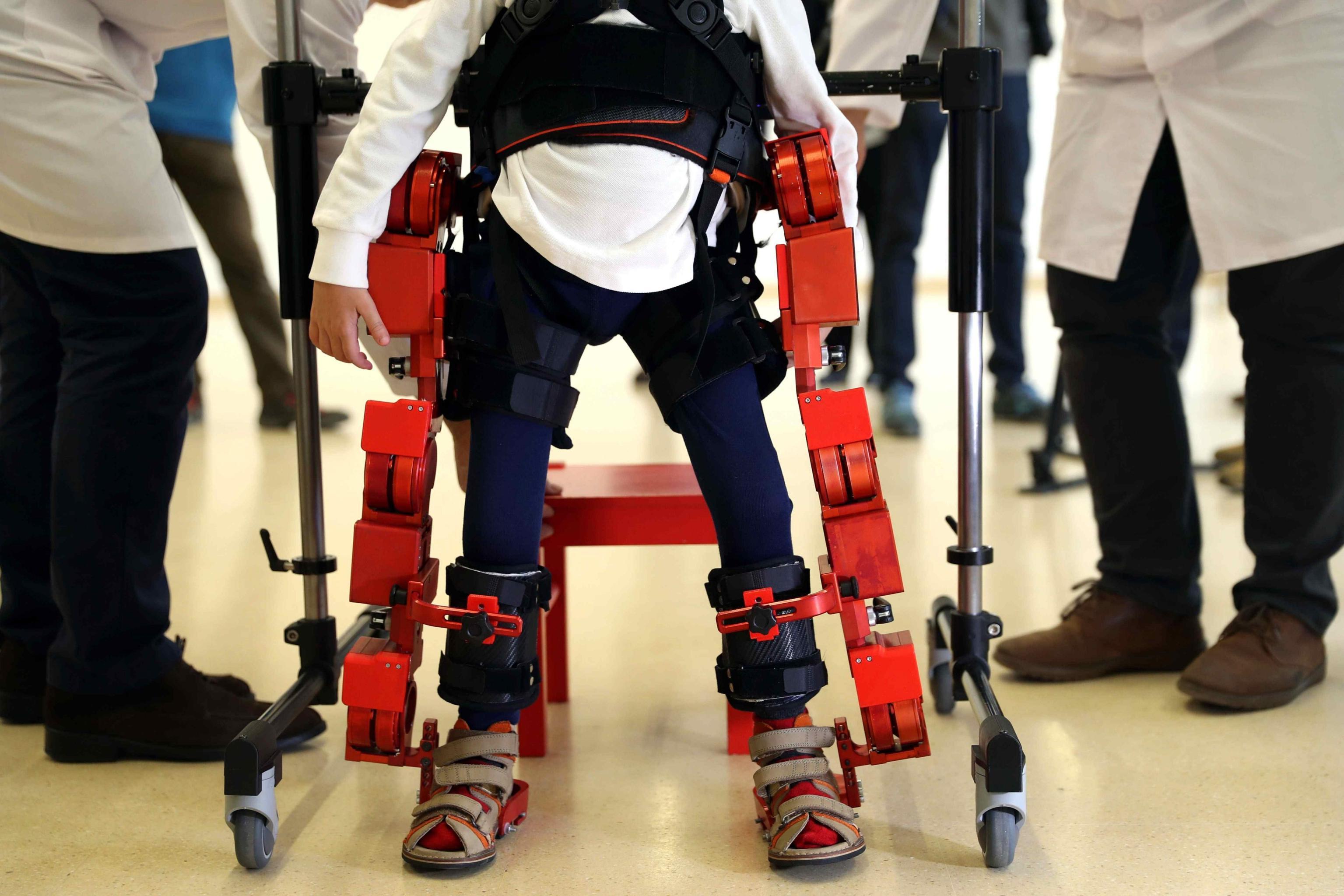 Atrofia muscolare spinale (Sma): studio mostra i benefici di una nuova terapia